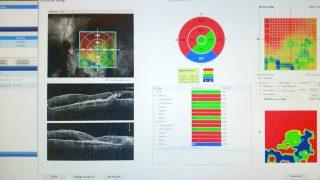 IMG_6250-540x540-Patologie