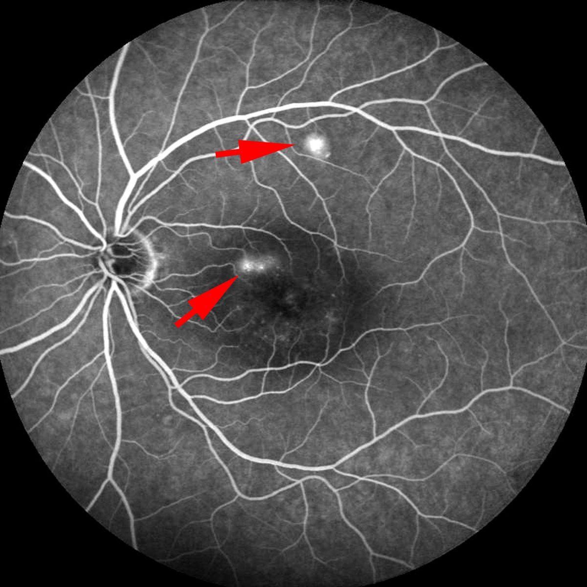 retinop_sierosa-_centrale-1200x1200.jpg