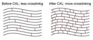 crosslinking-320x140-Cheratocono: trattamento AVREDO KXL