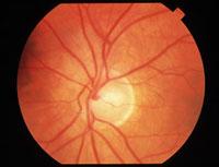 Sindrome_di_leber-320x216-Atrofia ottica: nuove prospettive terapeutiche