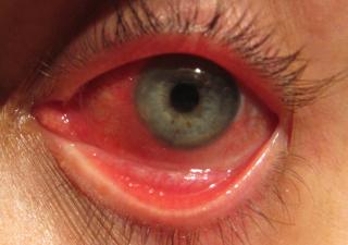 congiuntivite_Virale-320x320-Cheratite da Adenovirus