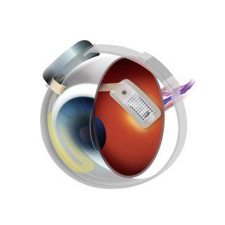 occhioB1-320x127-Frontiere della neuroscienza: biomembrana e occhio bionico