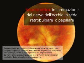 neurite-ottica-320x240-Papilliti bilaterali