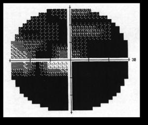 OCT_glaucoma-320x309-Glaucoma a bassa pressione