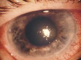 glaucoma_angoloChiuso-Glaucoma primario ad angolo chiuso