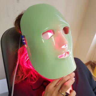 Occhio secco: laser pulsato. Seconda fase del trattamento